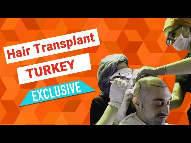 EXCLUSIVE Hair Transplant Center in Turkey