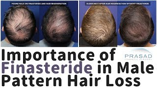 Why Finasteride is Important in Male Pattern Hair Loss Treatment, Especially in Young Men