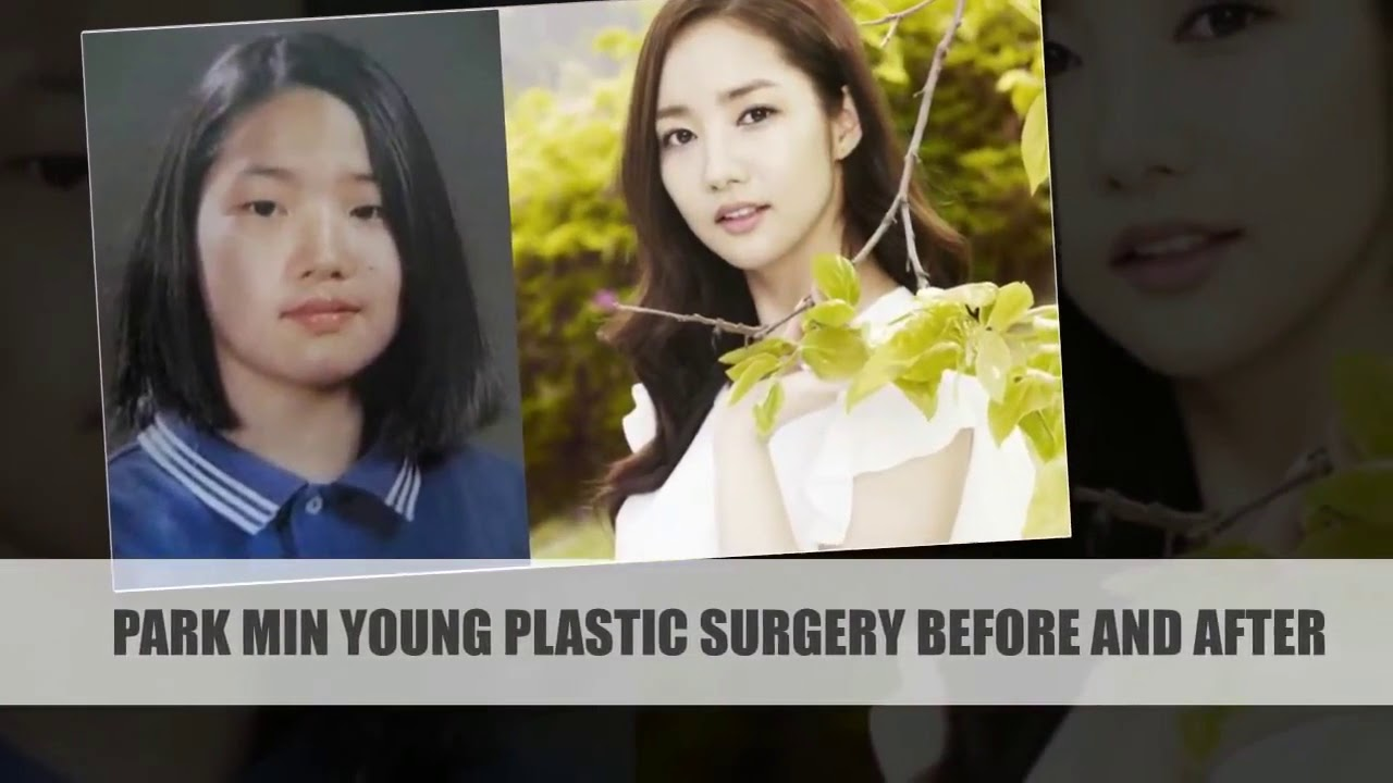Before And After Park Min Young Plastic Surgery Youtube