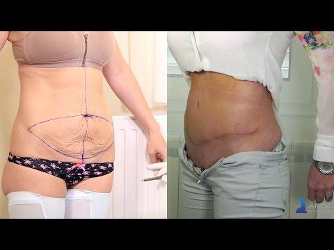 Abdominoplastika Zatezanje Kože Trbuha Strije Postupak Rezultati Poliklinika Arcadia