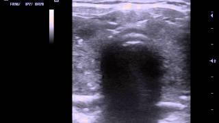 УЗИ щитовидной железы АИТ(, 2015-08-19T19:18:38.000Z)