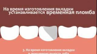 Протезирование зубов вкладками(Протезирование зубными вкладками - процедура фиксации микропротеза (зубной вкладки) на необходимом зубе..., 2010-10-06T10:47:46.000Z)