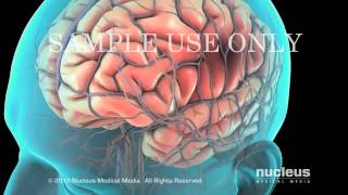Atrial Fibrillation  Cardioversion - YouTube.flv