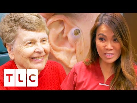 Dr. Lee Removes A Massive 55 Year Old Blackhead! | Dr. Pimple Popper Mp3