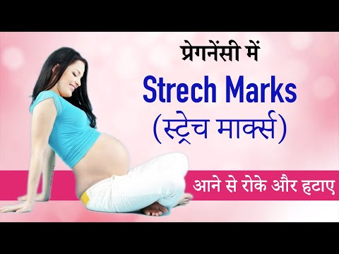 How to Remove Stretch Marks During Pregnancy, After Delivery in Hindi | Pregnancy Stretch Marks Kai