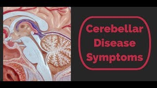 Cerebellar Disease Symptoms