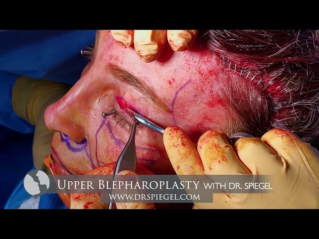 Upper Blepharoplasty Procedure