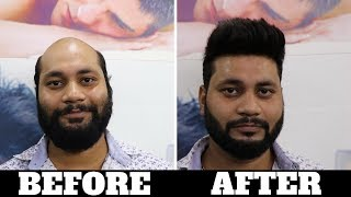 BEFORE & AFTER  indias Best hair fixing center, A non surgical hair fixing system for men in DELHI