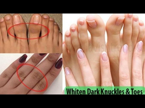 how to remove wrinkles from hands and legs