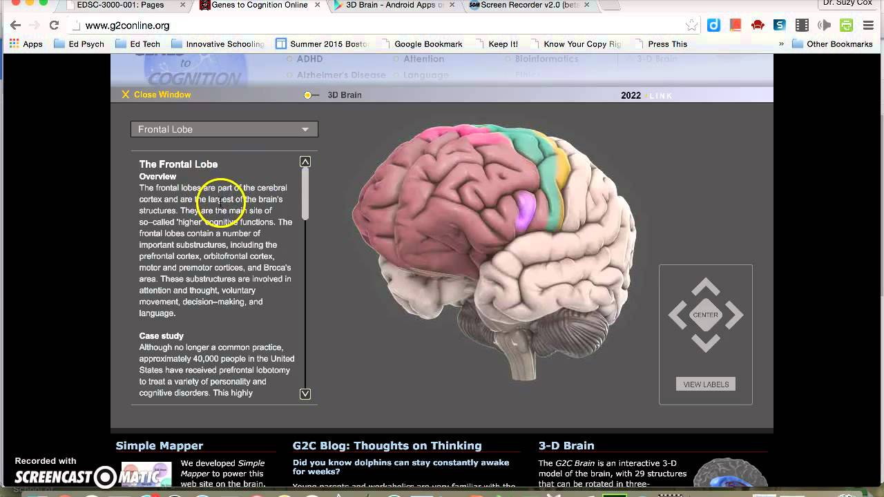 Brain Anatomy Preparation - YouTube