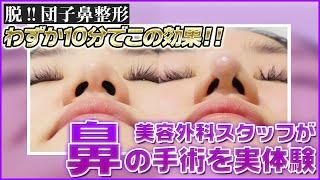 「脱!だんご鼻 vol.1」-鼻尖修正- 【東京ヒルズクリニック】 thumbnail