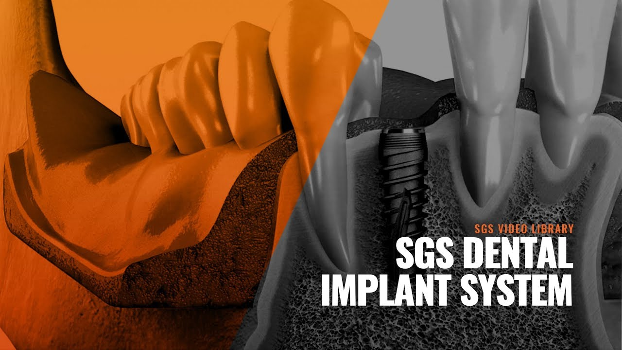 SGS Dental – Dental Implant System – Simplicity Guarantees