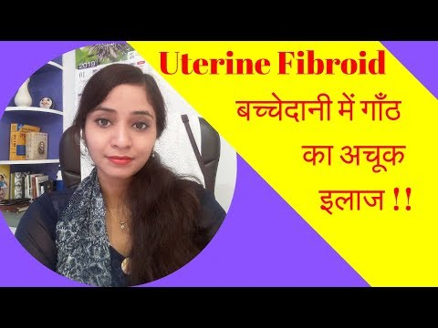 Uterine Fibroids Homeopathic Treatment - Uterus Lump, Uterus Tumor, Rasoli, Symptoms And Causes