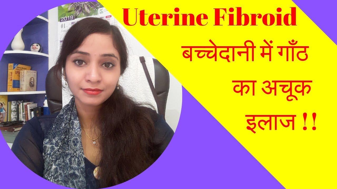 Uterine Fibroids Homeopathic Treatment - Uterus Lump, Uterus Tumor, Rasoli,  Symptoms and Causes