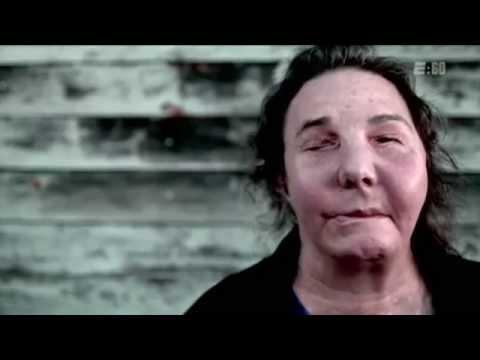 Resilience - Carmen Blandin Tarleton's Face Transplant Story