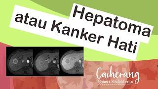 Gejala, Penyebab, Pengobatan dan Pencegahan Kanker Lambung.
