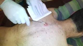 Awesome after cyst wick removal...EWWW!!!