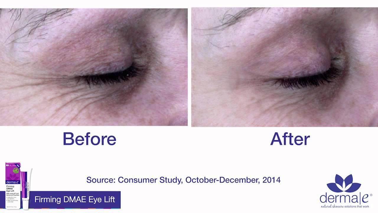 Derma E Anti-Wrinkle Eye Cream Anthony - Logistics For Men Day Cream SPF 30 -90ml/3oz