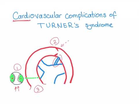 Cardiovascular complications in Turner syndrome