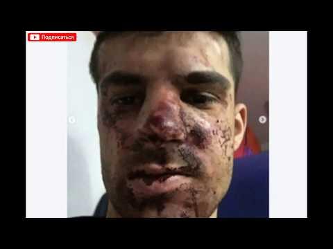 Избитый футболист Зенита Денис Терентьев раскрыл подробности инцидента