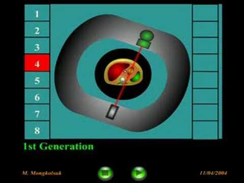 CT scanner: 1st Generation