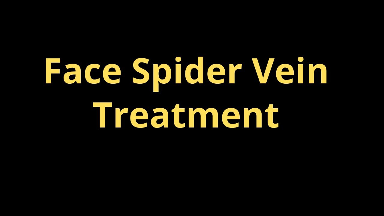 Best cream for spider veins on face