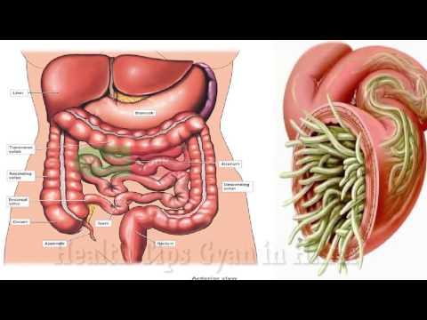 पेट में कीड़े होने के लक्षण और उन्हें दूर करने के असरदार उपाय  Stomach Pet Ke Kide Ka Gharelu Ilaj