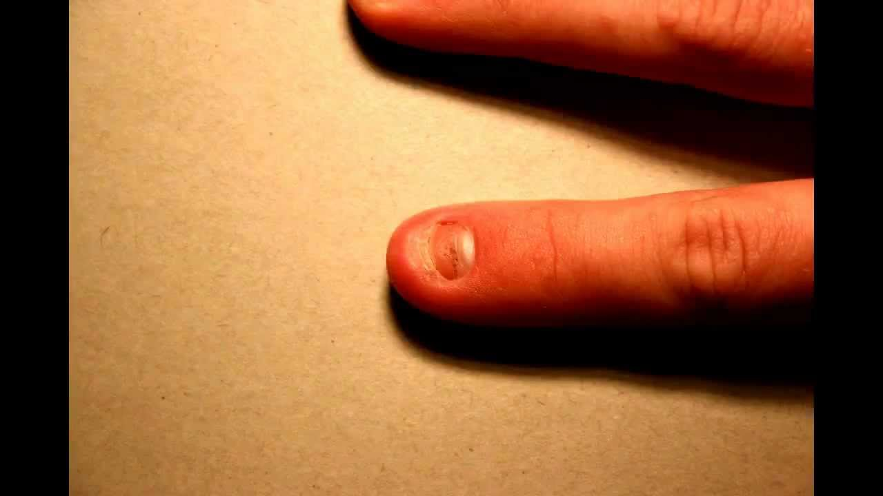Time Lapse of fingernail growing back