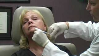 Radiesse - Dr. William Hall - Filler Procedure