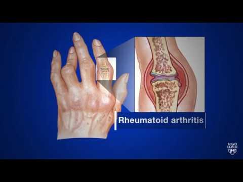 Mayo Clinic Minute What's Rheumatoid Arthritis?