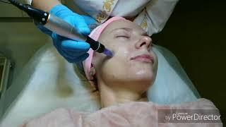 Фракционная мезотерапия. Презентация процедуры