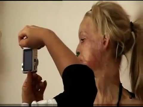 Katie Piper face reconstruction with endermologie
