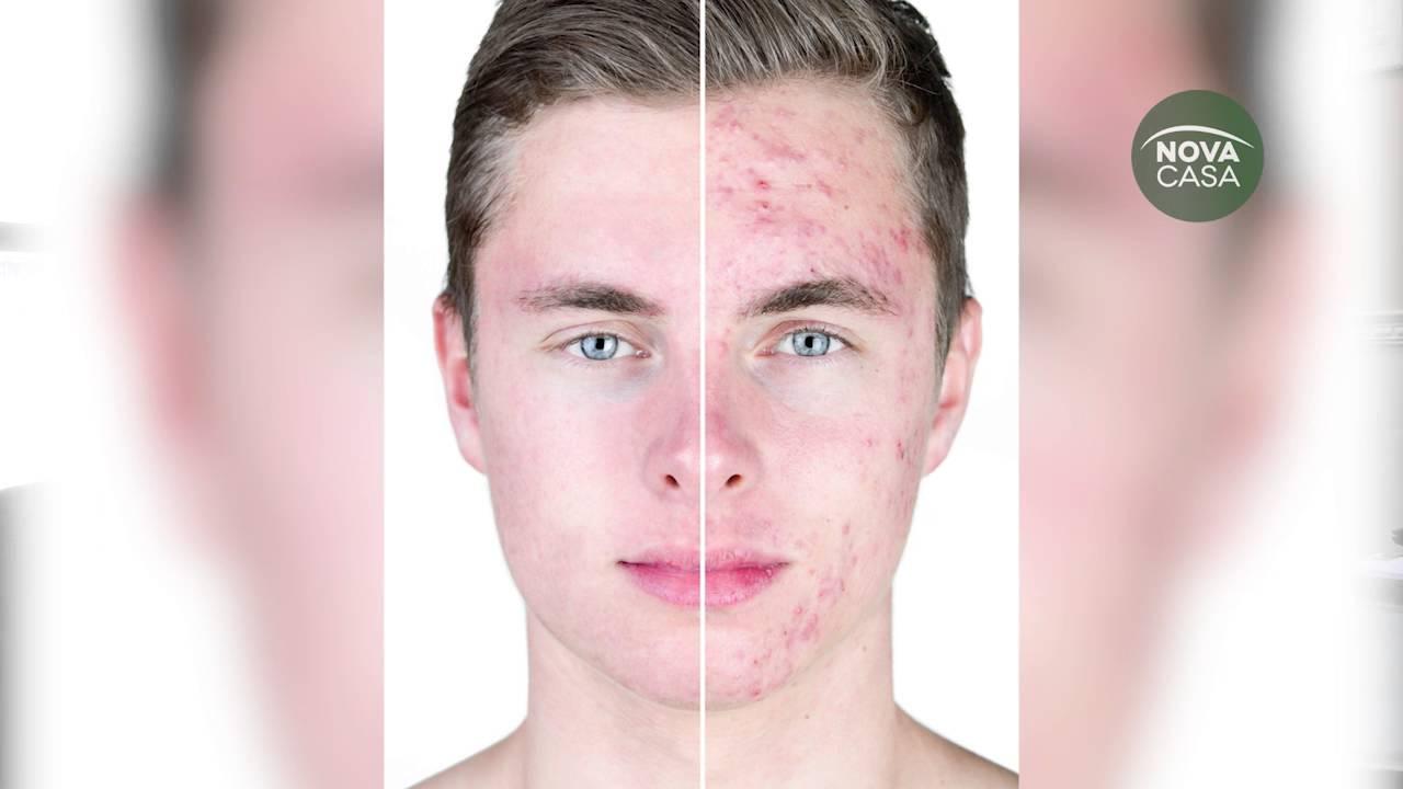 neotrex antes y despues de adelgazar