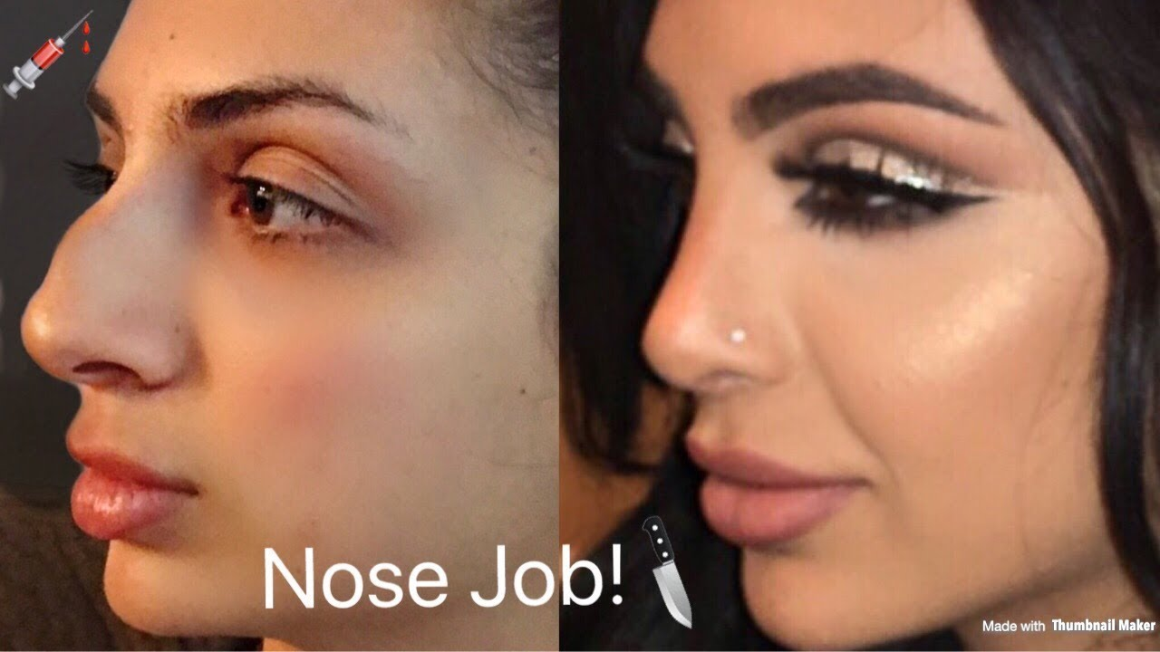 MY NOSE JOB! Plastic Surgery Tell All