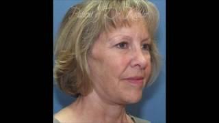 Dr. James Koehler | Before & After Video: Facelift Case #78