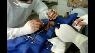 DMC Veterinária   Remoção de dois tum...