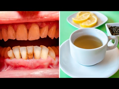 5 Ways Green Tea is Good for Your Teeth and Gums