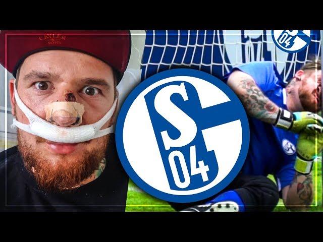 Fussball CHALLENGE gegen SCHALKE PROFI endet in KRANKENHAUS OP 😱