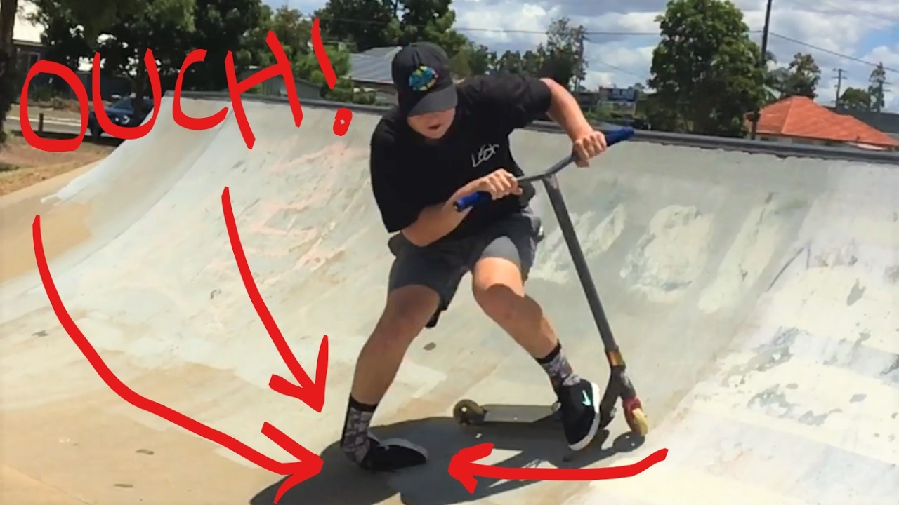 Bmx Rider Breaks Ankle On Scooter Not Click Bait Youtube