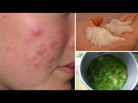 5 Homemade Cystic Acne Remedies That Really Work