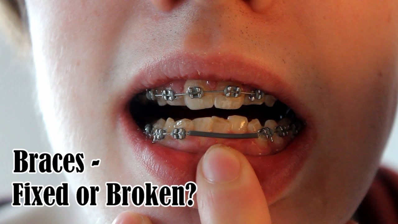 Braces - Fixed or Broken? - YouTube