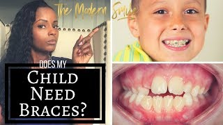 Does your child need braces? Top 2 signs to look for.