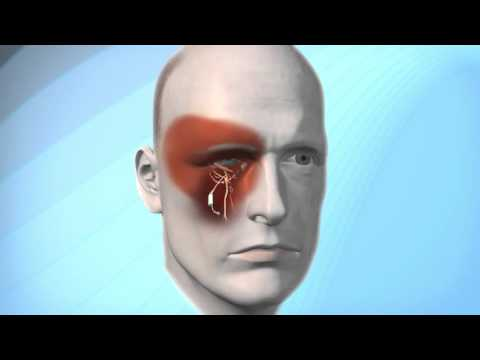 Pulsante Microstimulator for Cluster Headache