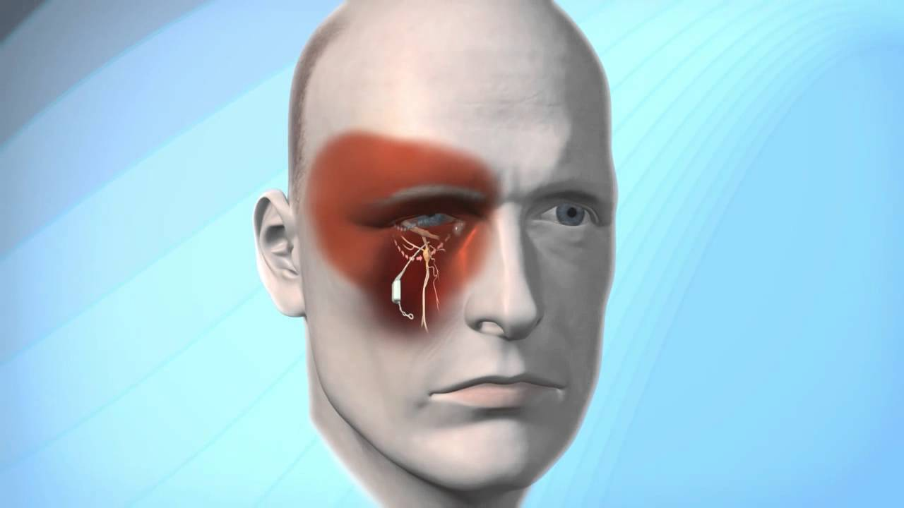 how to stop having cluster headaches