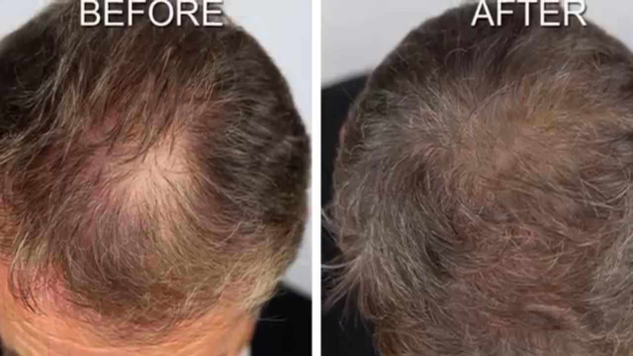 Hair Growth Before And After Hair Growth Remedy Results