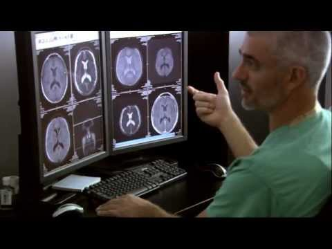 Download Youtube: A day in the life of a neurosurgeon