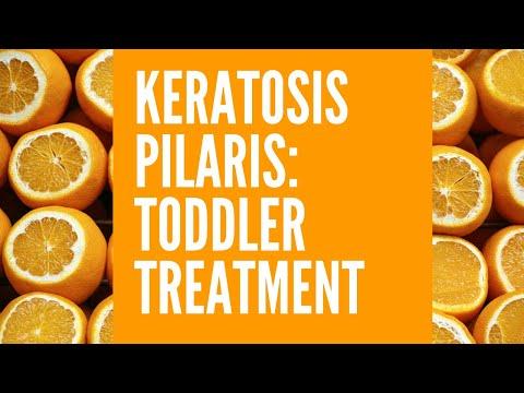 Keratosis Pilaris Toddler Treatment