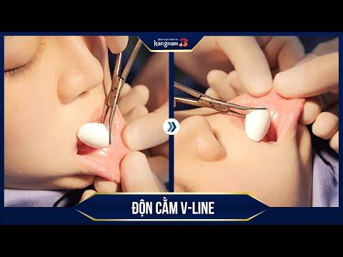 Cận cảnh phẫu thuật độn cằm V Line | Thẩm mỹ viện Kangnam