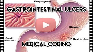 ICD-10-CM Coding Guidelines — Understanding Gastrointestinal Ulcers