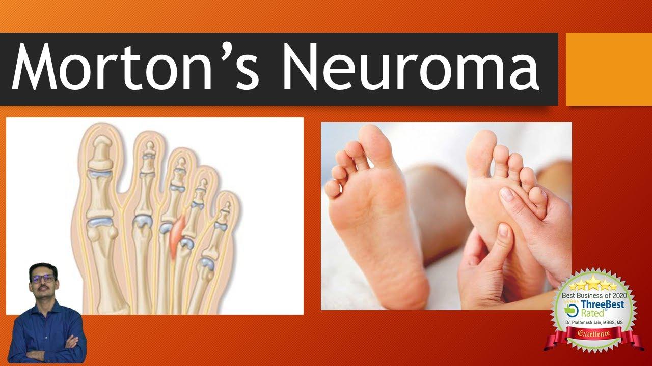 Morton's Neuroma (Interdigital Neuroma) English. Metatarsalgia